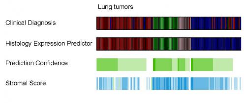 RNA diagnostic test from paraffin improves lung cancer diagnosis over routine microscopic evaluation