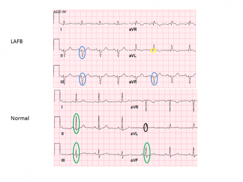 Routine EKG finding could signal serious heart problem