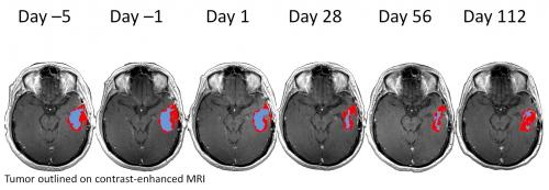 New MR analysis technique reveals brain tumor response to anti-angiogenesis therapy
