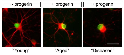 Scientists accelerate aging in stem cells to study age-related diseases like Parkinson's