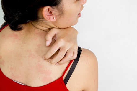 Scratching the surface: why skin allergies make us itch