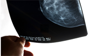 Screen-film mammography bests computed radiography