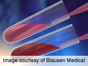 Serum <i>miR-21</i> putative biomarker for colorectal cancer