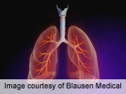 Shift in lung allocation score alters transplant survival