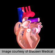 Simple breath test might diagnose heart failure