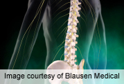Spinal surgery helps neuro functioning in dialysis patients