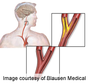 Stenting of neck arteries  tied to higher stroke risk in seniors