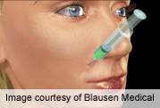 Study examines botox dose disparity in aesthetic face tx