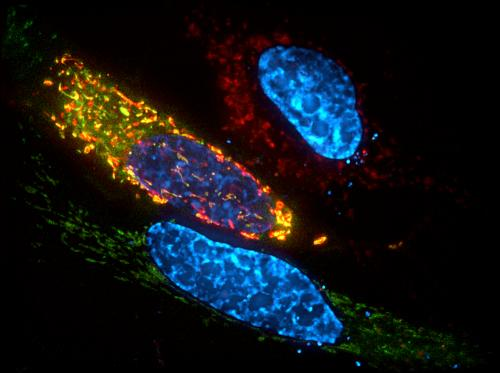 Study IDs key protein for cell death