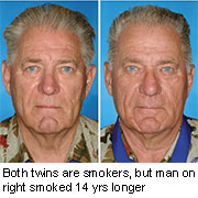 Study of twins shows how smoking ages the face