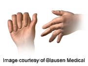 Tofacitinib ups rheumatoid arthritis treatment response