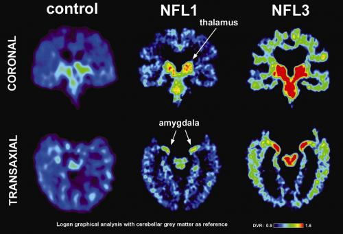 UCLA study first to image concussion-related abnormal brain proteins in retired NFL players