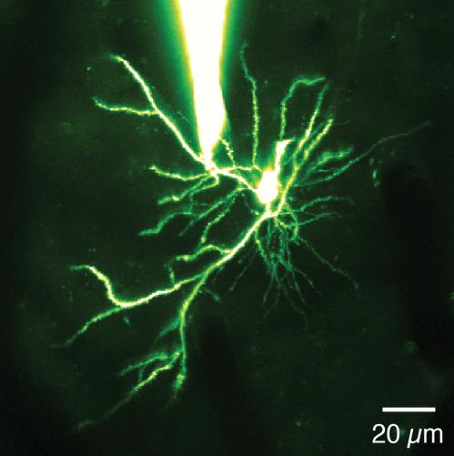 UNC neuroscientists discover new 'mini-neural computer' in the brain