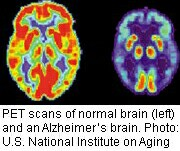 U.S. launches extensive alzheimer's studies