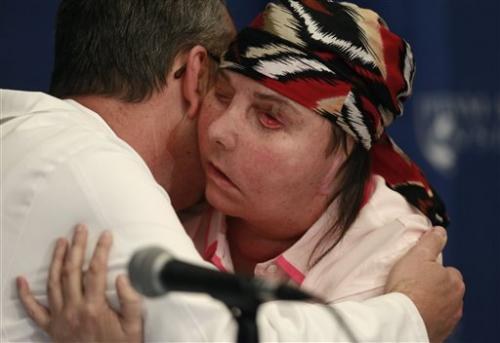 US woman disfigured in lye attack reveals new face