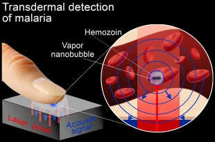 Vapor nanobubbles rapidly detect malaria through the skin