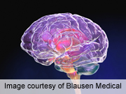 Vascular markers linked to cognitive decline in diabetes