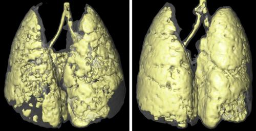 Visualizing how infection exacerbates lung disease