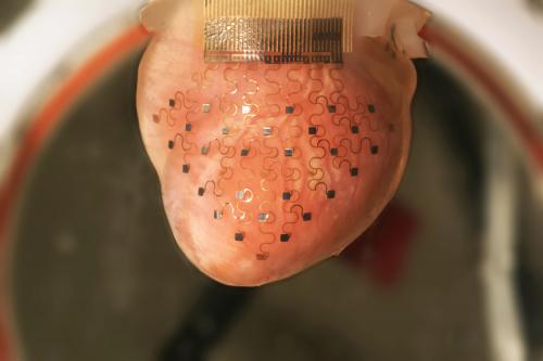 3-D printer creates transformative device for heart treatment (w/ Video)