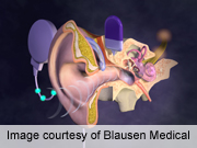 Cochlear implantation improves hearing in Ménière's disease