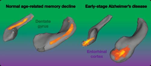 Dietary flavanols reverse age-related memory decline