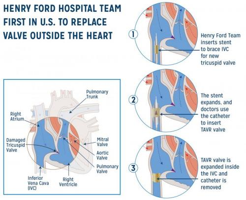 Henry Ford Hospital replaces heart valve outside the heart