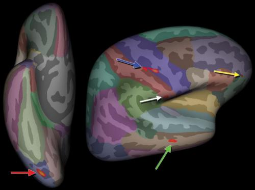 MRI identifies brain abnormalities in chronic fatigue syndrome patients
