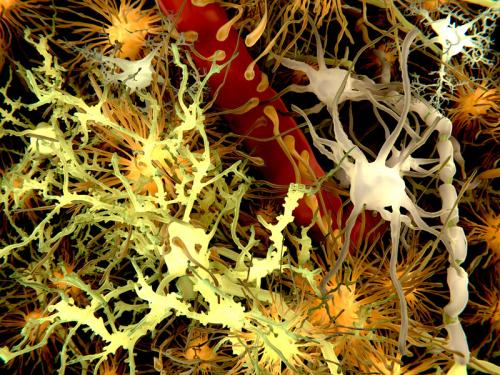 New insight on why people with Down syndrome invariably develop Alzheimer's disease