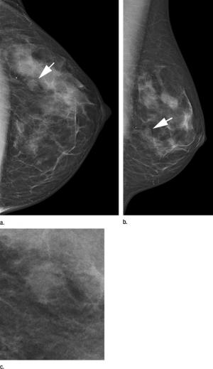 Novel technique increases detection rate in screening mammography