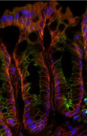 Research offers insight into cellular biology of colorectal cancer