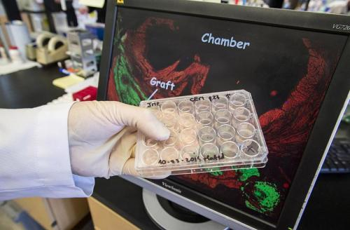 Stem cell therapy regenerates heart muscle damaged from heart attacks in primates