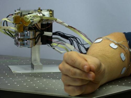 Researchers develop ultramodern forearm prosthesis