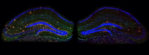 Neuroscientists find that limiting a certain protein in the brain reverses Alzheimer's symptoms in mice