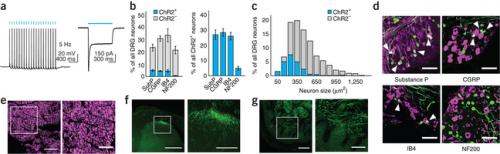 Researchers turn pain perception on and off in mice using light