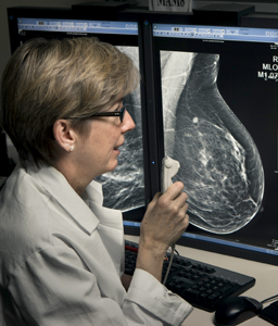 3D mammography detects more invasive cancers and reduces call-back rates