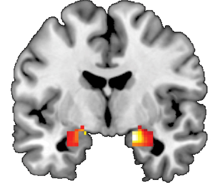 Researchers find potential new predictor of stress-related illnesses