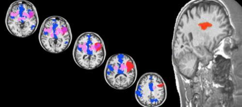 Researchers find brain's 'sweet spot' for love in neurological patient