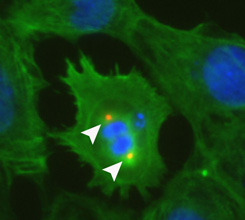Researchers find protein 'switch' central to heart cell division