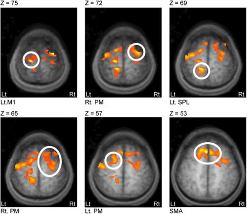 Connecting the dots: Water diffusion MRI reveals plasticity networks in remote nonstimulated brain regions
