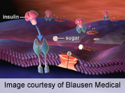 Adipose tissue macrophage iron content altered in obesity