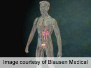 <i>E. cuniculi</i> can cause febrile illness after transplant