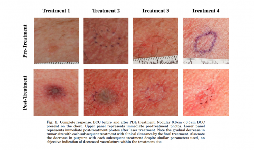 New non-invasive treatment of basal cell carcinoma