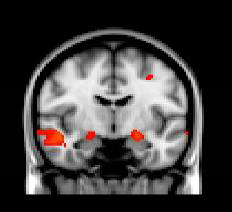 Brain responses to emotional images predict PTSD symptoms after Boston Marathon bombing