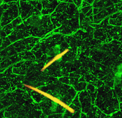 Brain uses serotonin to perpetuate chronic pain signals in local nerves