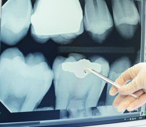Bringing dental x-ray technology into the fast lane