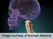 Cervical spine clearance protocols vary considerably
