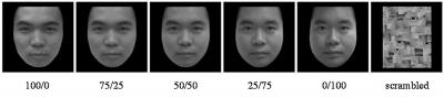 Chinese researchers describe impaired self-face recognition in those with major depressive disorder