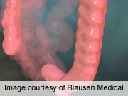 Colonoscopy is indicated in unscreened elderly patients