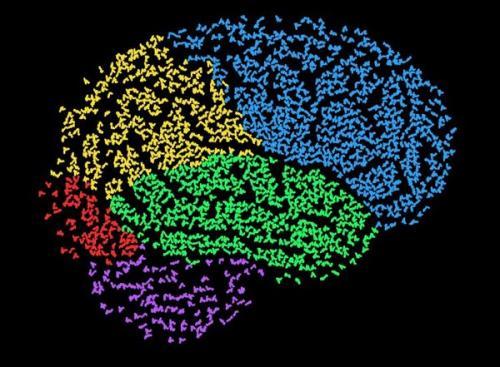 Computer supports interpretation of EEGs