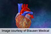 Coronary CT angiography IDs cardiac allograft vasculopathy